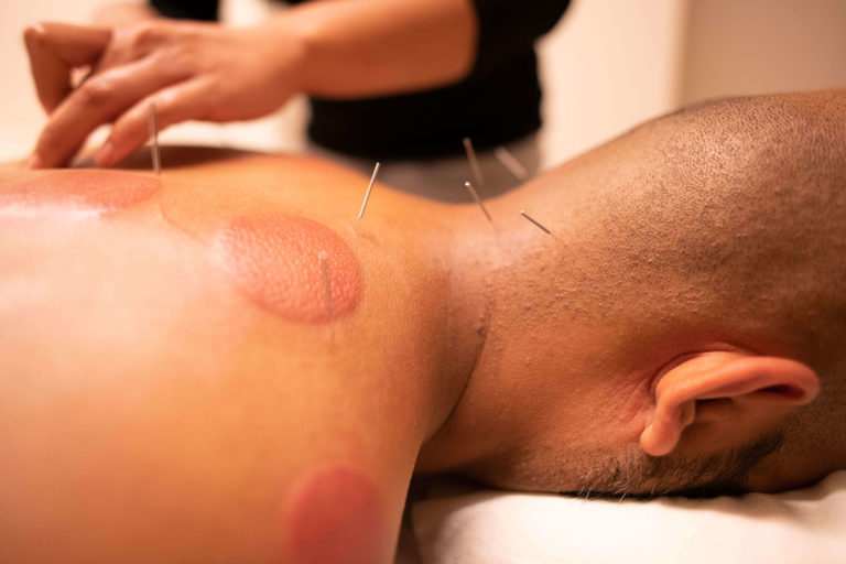 Acupunture Axis